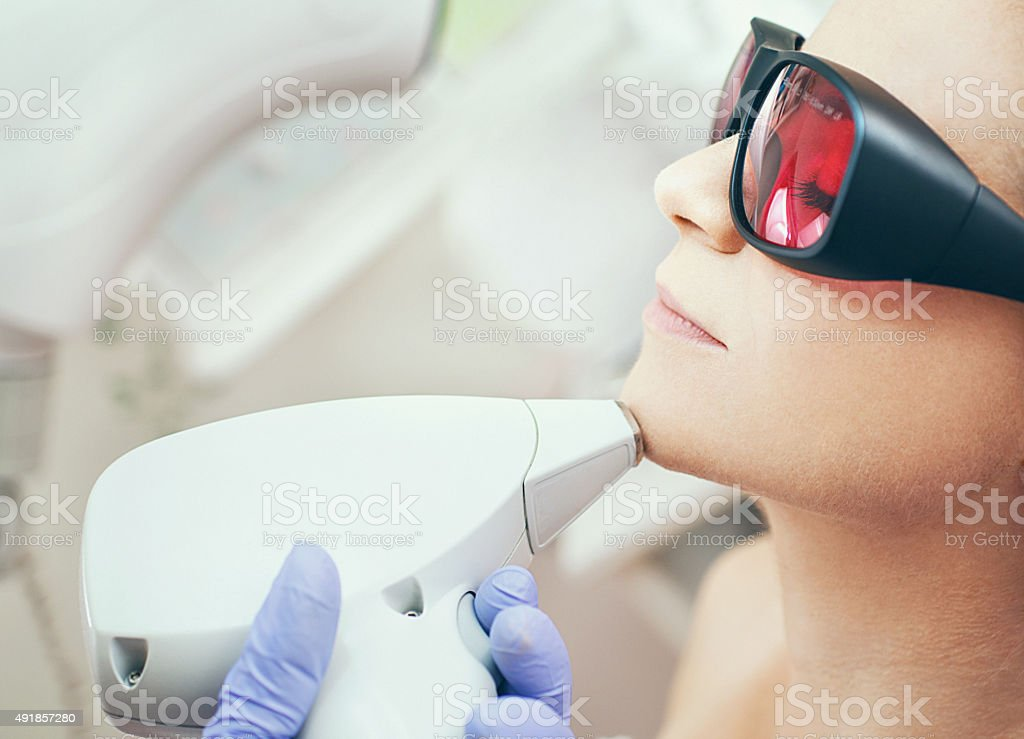 Laser hair removal. stock photo