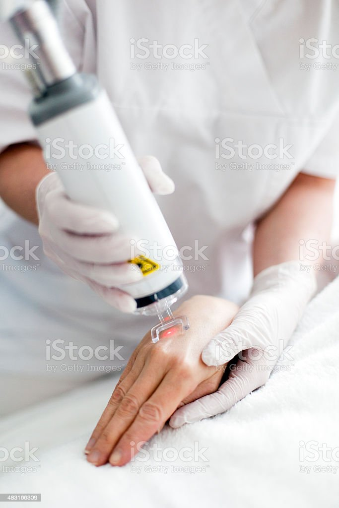 Laser Skin Resurfacing stock photo