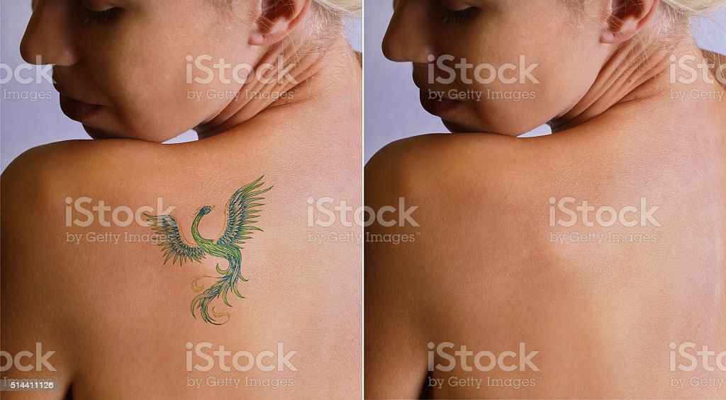 Laser tattoo removal befor and after. stock photo