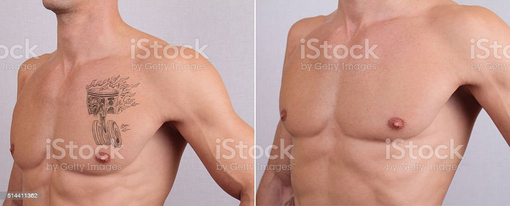 Laser tattoo removal before and after stock photo