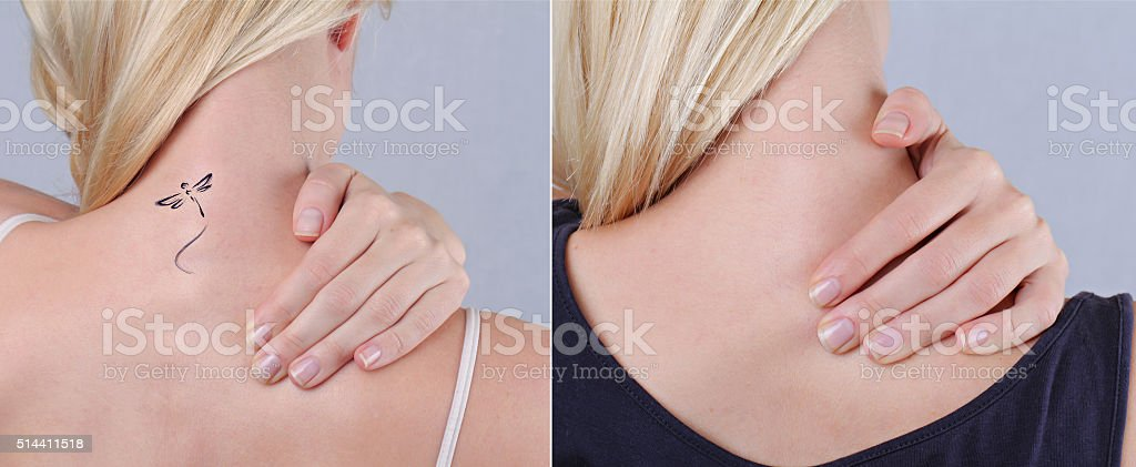 Laser tattoo removal before and after. stock photo