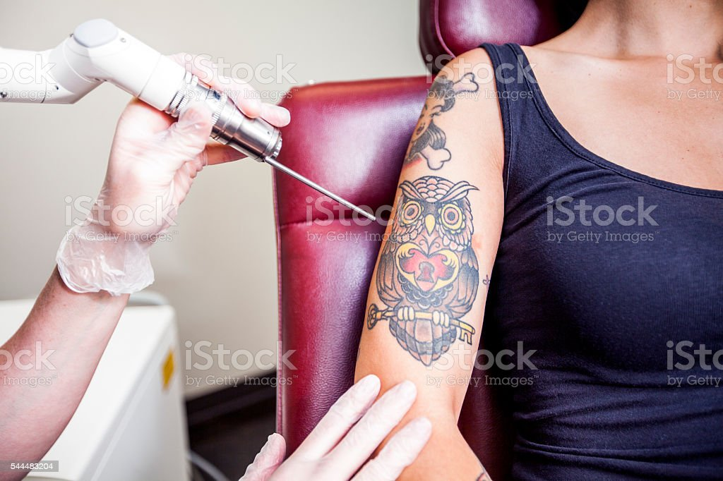 Laser Tattoo Removal stock photo