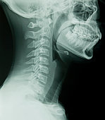 Lateral Cervical Spine X-Ray