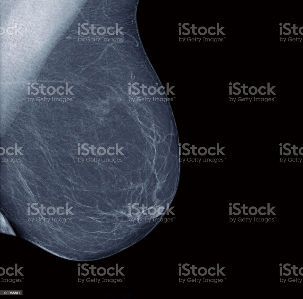 Lateral mammogram of normal female breast stock photo