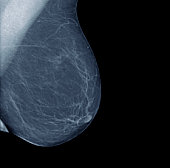 Lateral mammogram of normal female breast
