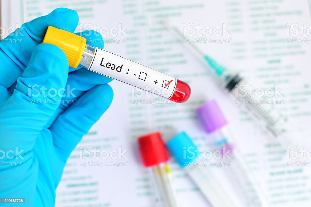 Lead testing positive stock photo