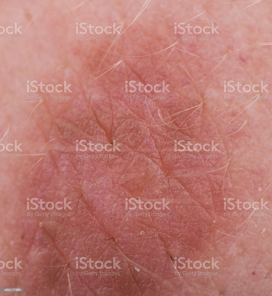 Leberfleck makroaufnahme stock photo