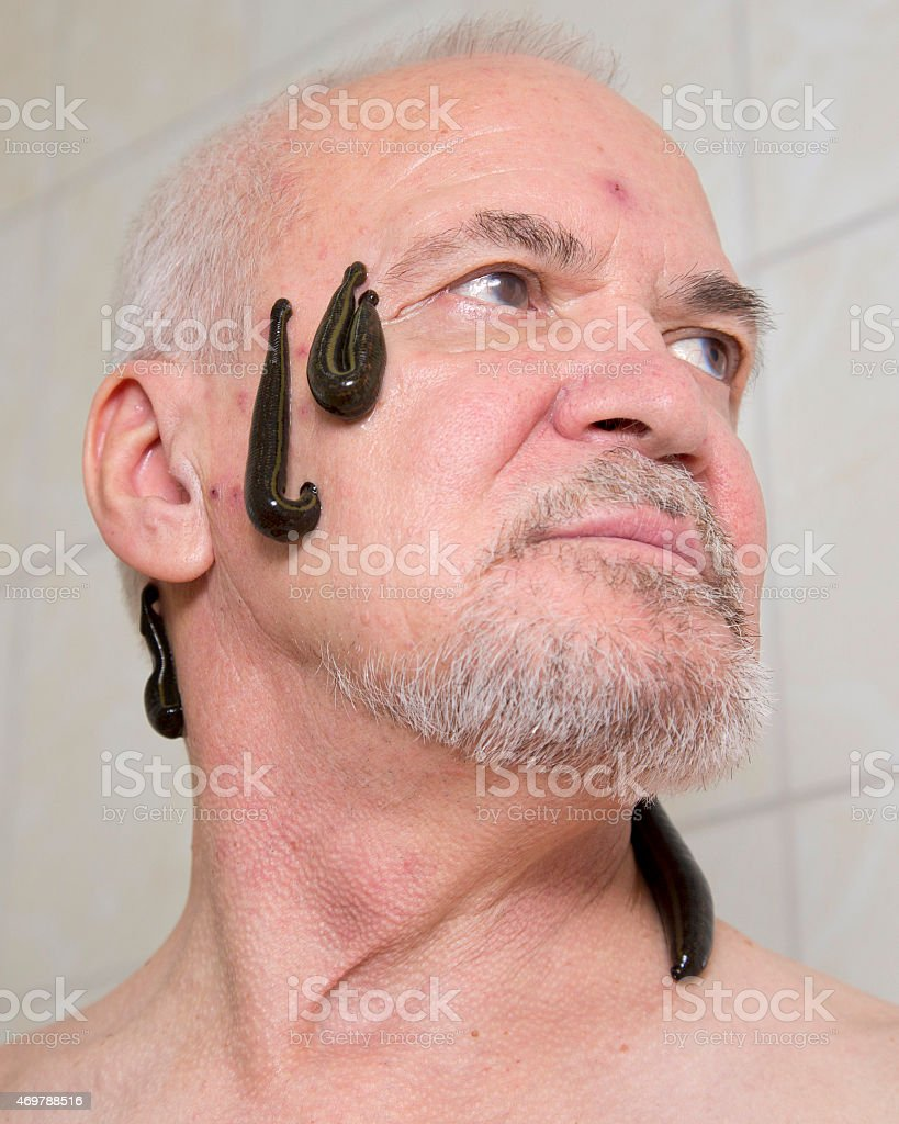 Leech therapy stock photo