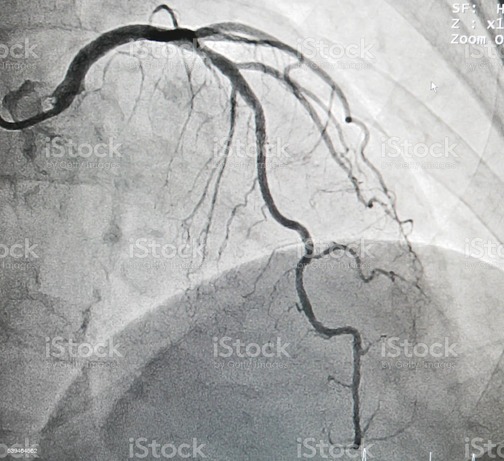 Left anterior descending artery stock photo
