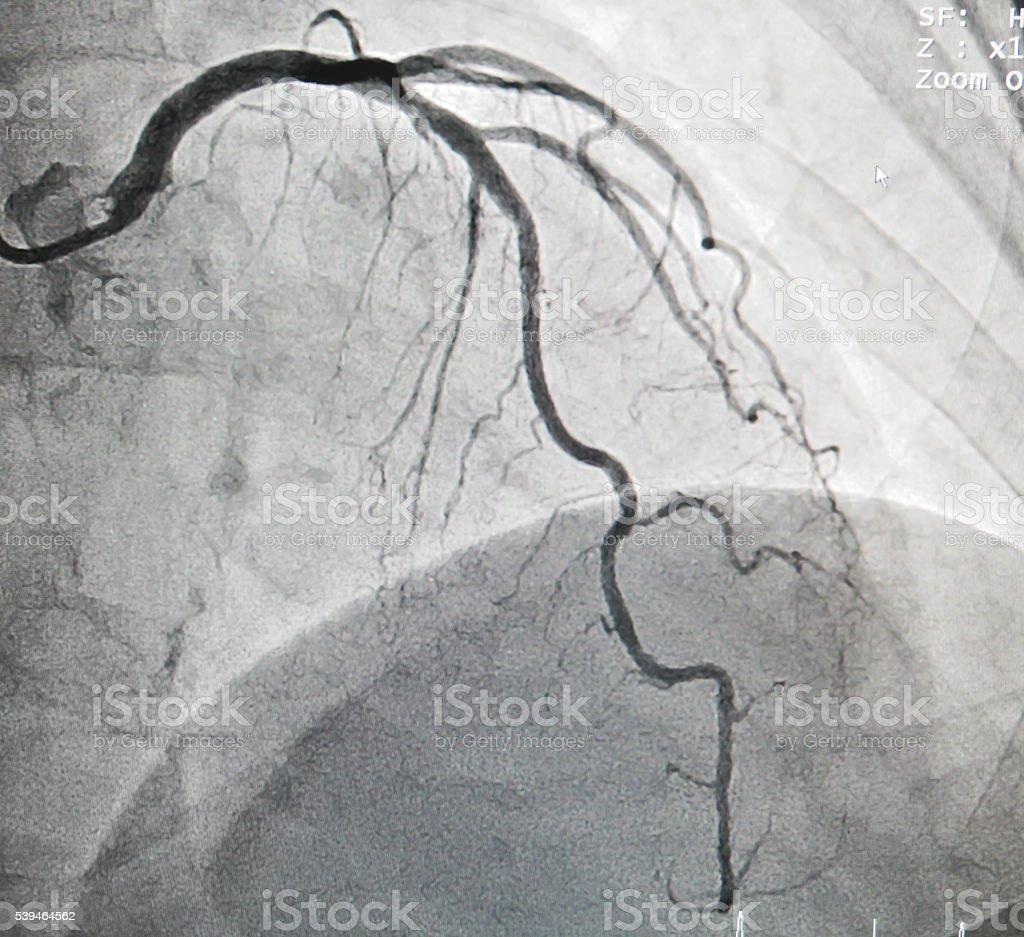 Left anterior descending artery stock photo