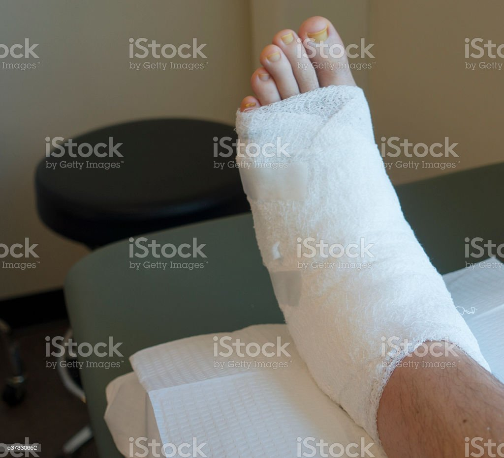 Left Foot in Compression Wrap at Podiatry Doctor's Office stock photo