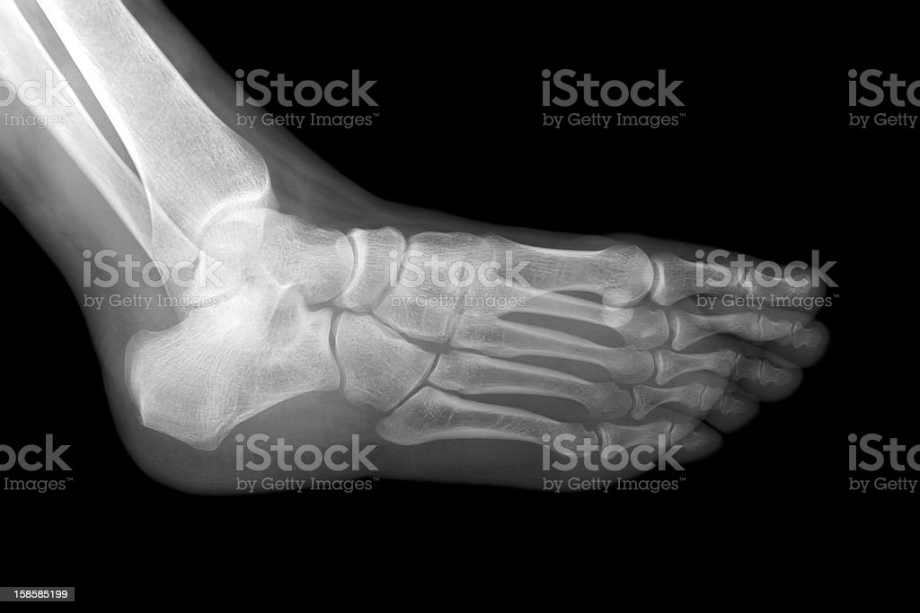 Left foot x-ray stock photo