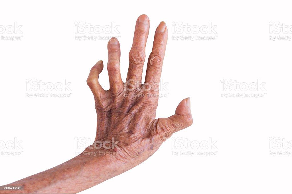 left hand of a leprosy isolated on white background stock photo