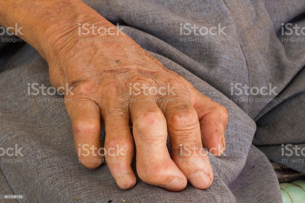 left hand of a leprosy. stock photo