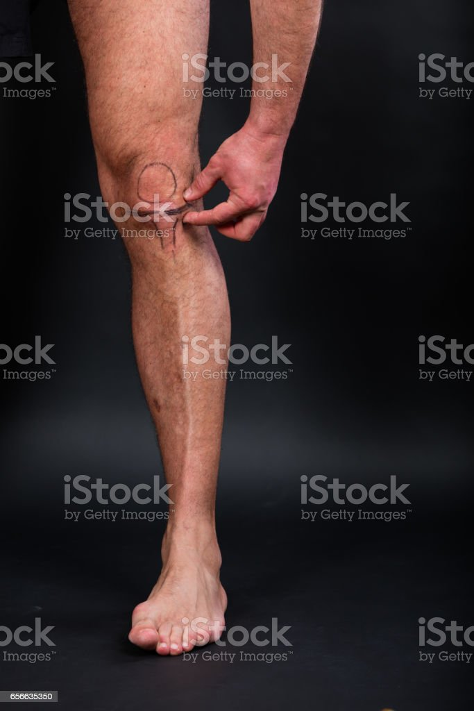 Left knee with drawing of patella and menisci stock photo