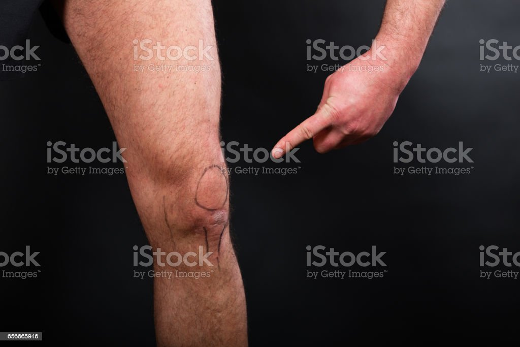 Left knee with drawing of patella stock photo