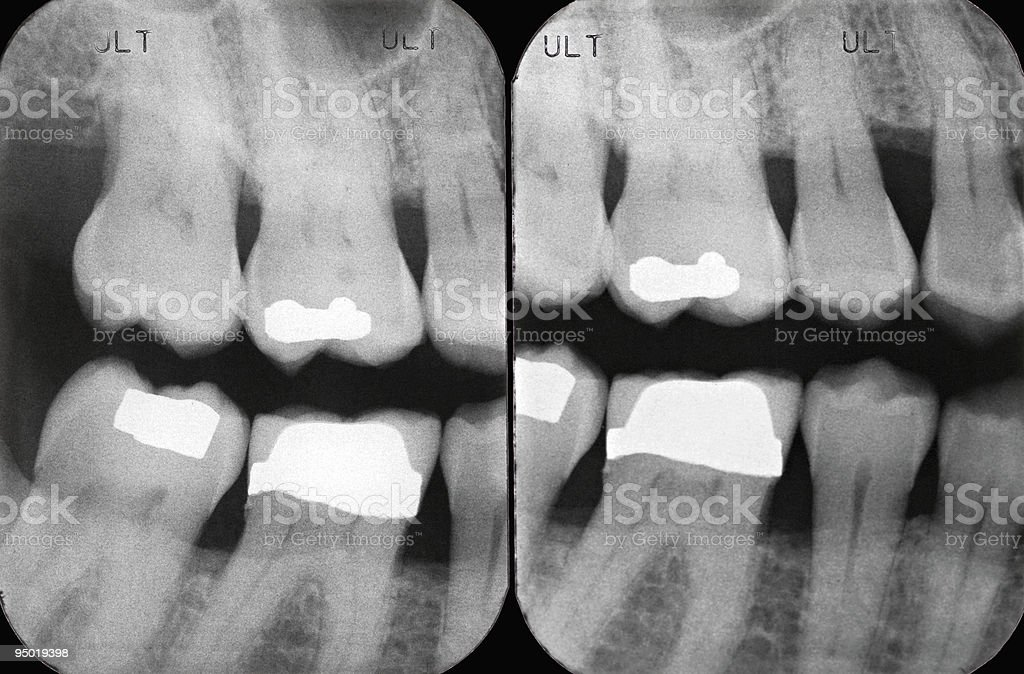 Left Periodontal X-rays stock photo