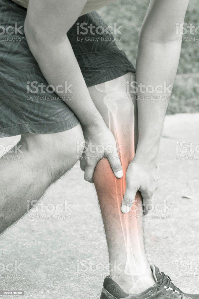 leg bones pain stock photo