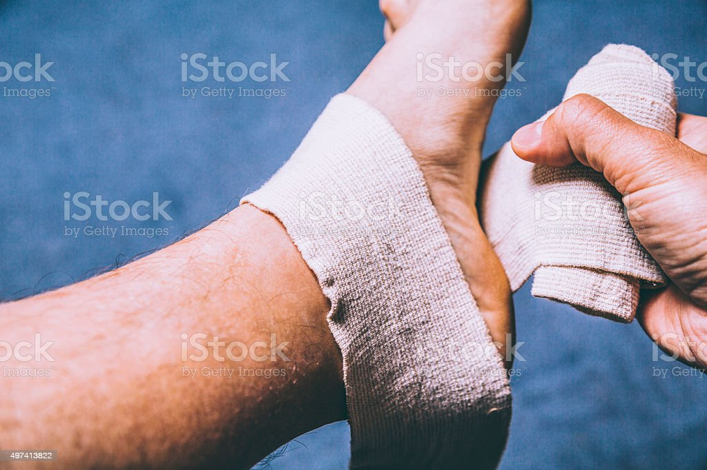 Leg tensor bandage being applied outdoors stock photo