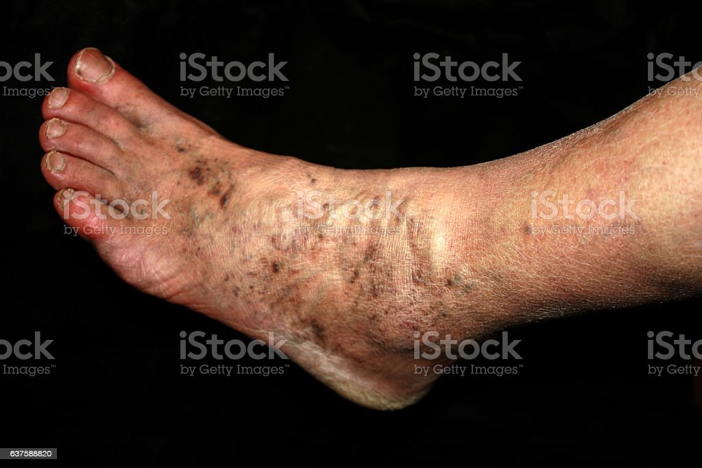Leg. Varicose veins. Phlebeurysm. Thrombophlebitis. stock photo