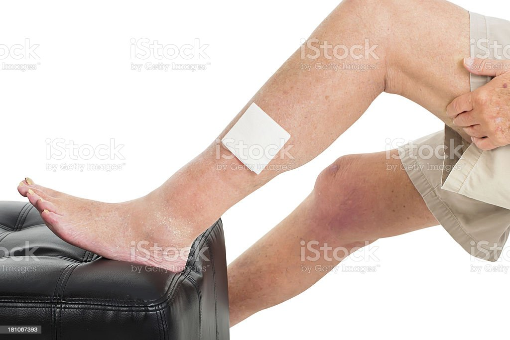 Leg Wound after treatment royalty-free stock photo