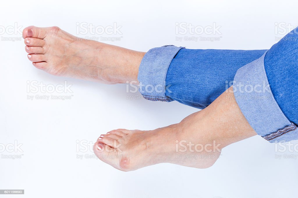 legs with bunions stock photo