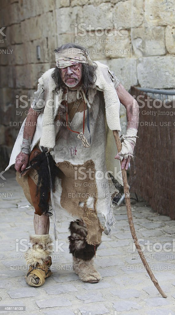 Leprous man stock photo