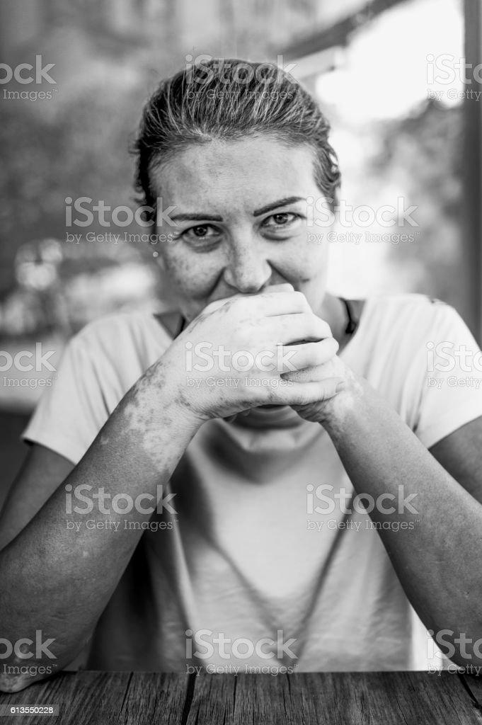 Leukoderma (Vitiligo), localized loss of pigmentation. stock photo