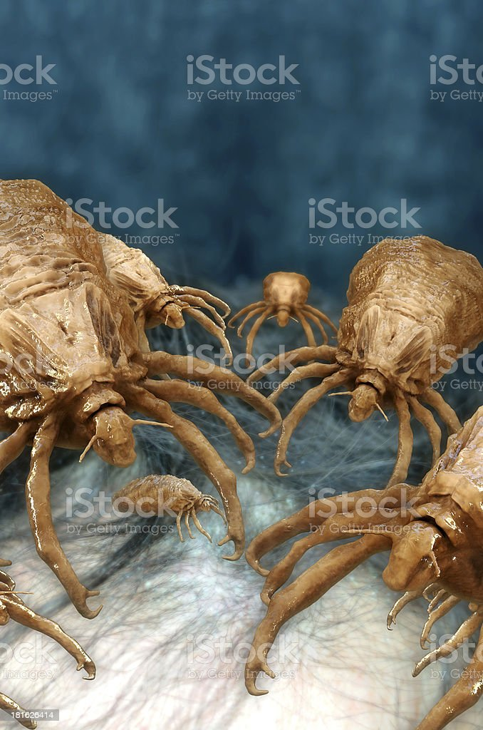Lice - 3d rendered illustration stock photo