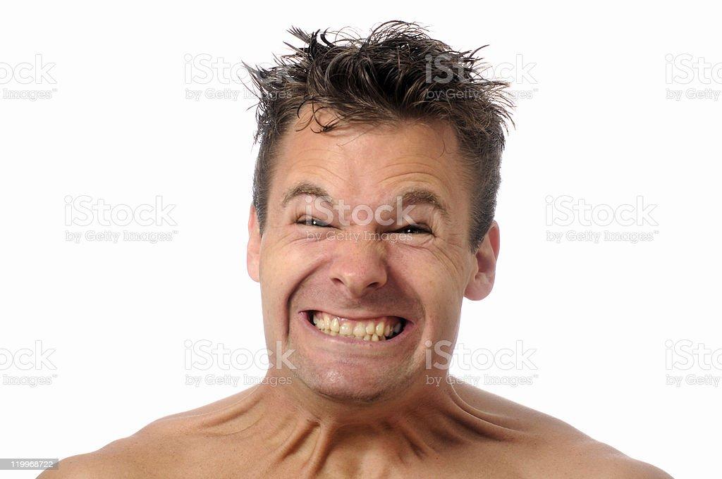 Ligament neck strain royalty-free stock photo