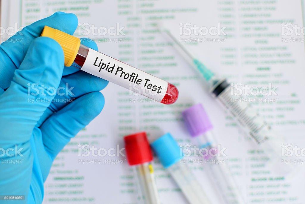 Lipid profile test stock photo