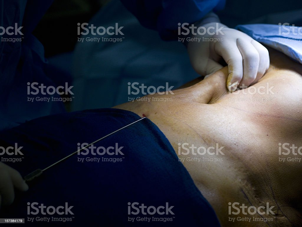 Liposuction royalty-free stock photo