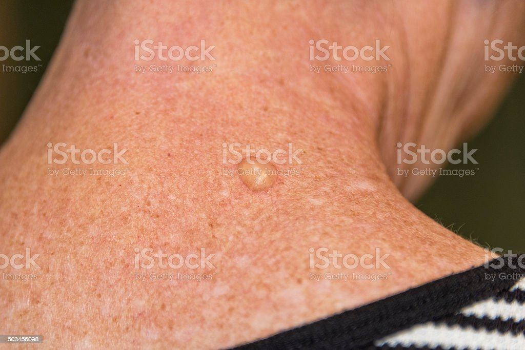 Liquid Nitrogen Therapy Blister stock photo