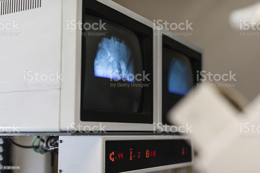 lithotriptor monitors stock photo
