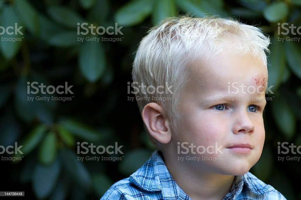 Little blond boy with head injury stock photo