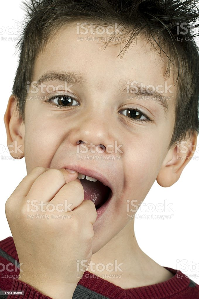 Little boy shows a broken tooth stock photo