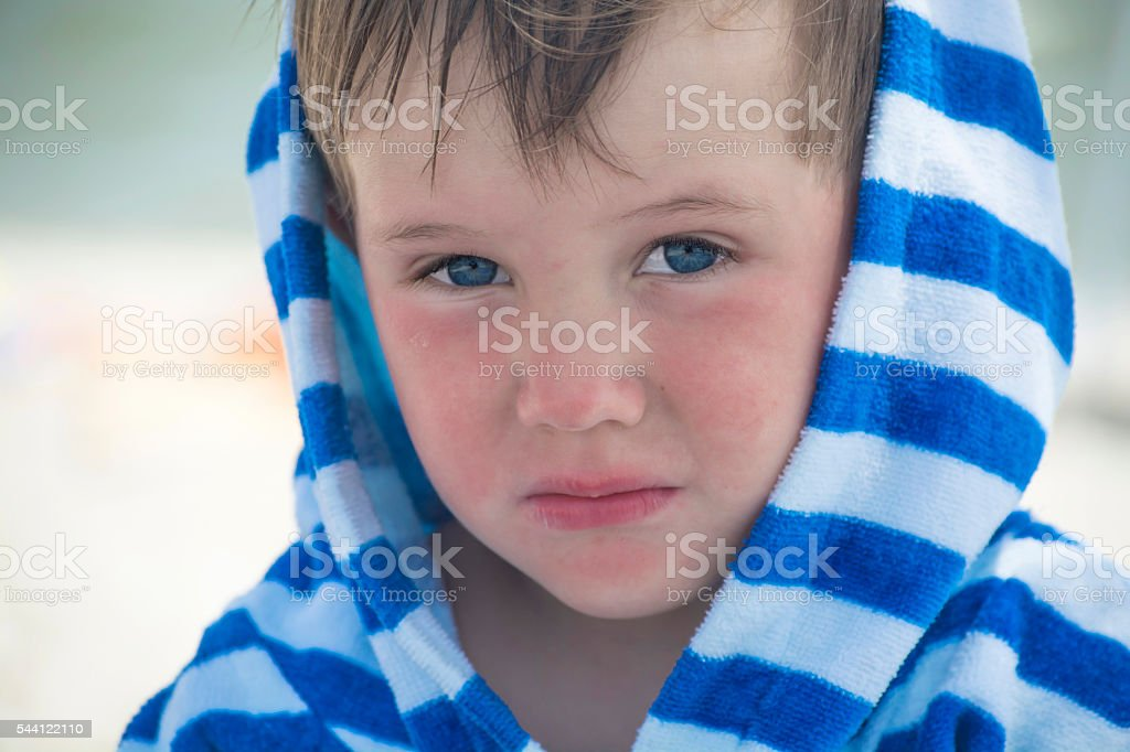 Little boy with atopic dermatitis in a striped bathrobe stock photo