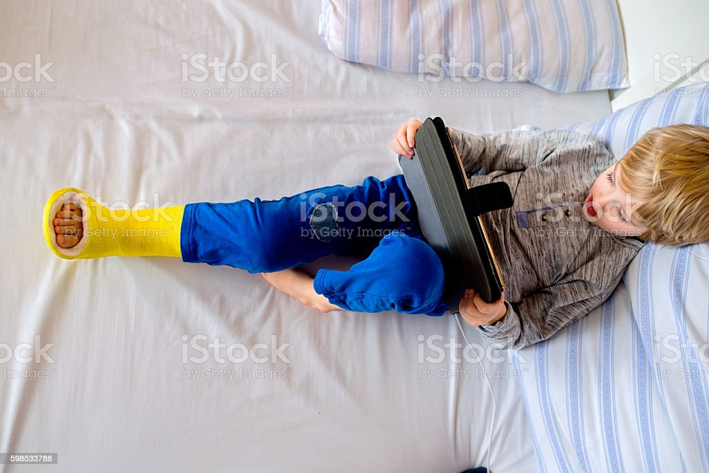 Little boy with broken leg playing on tablet stock photo