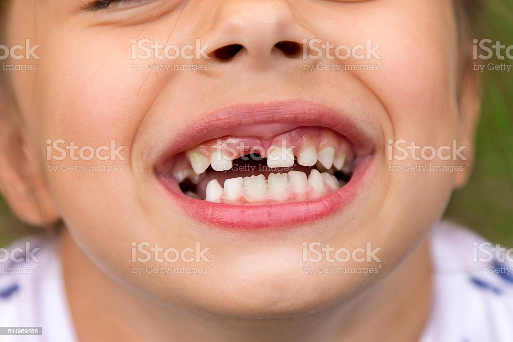 Little girl fell a baby tooth stock photo