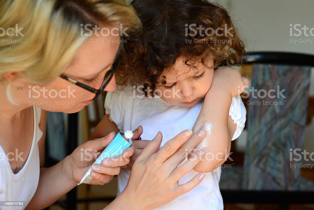 Little girl looking scrape on arm mother making cream stock photo