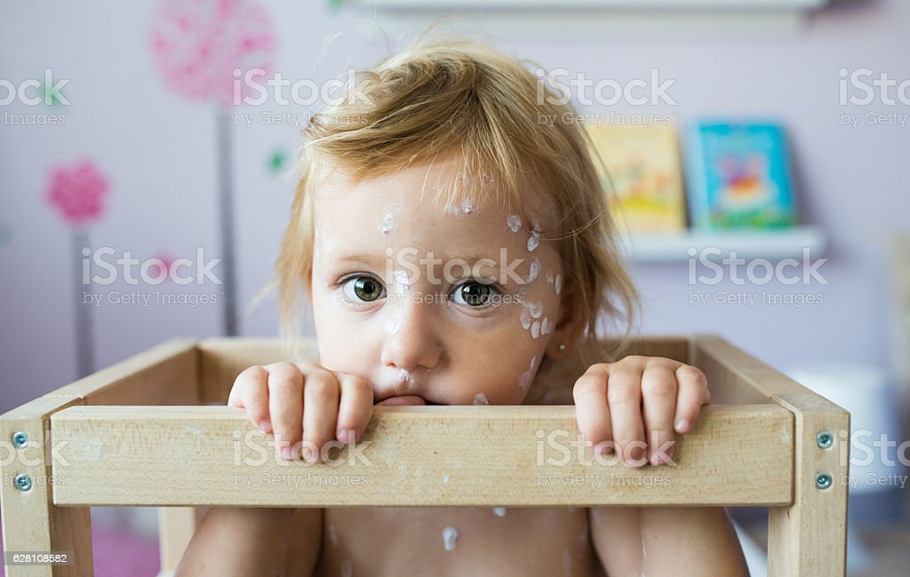 Little girl with chickenpox, sitting in wooden chair stock photo
