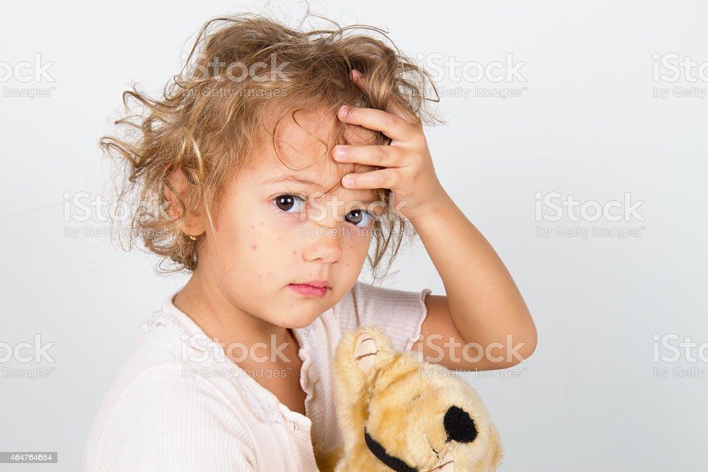 little girl with rubella virus stock photo