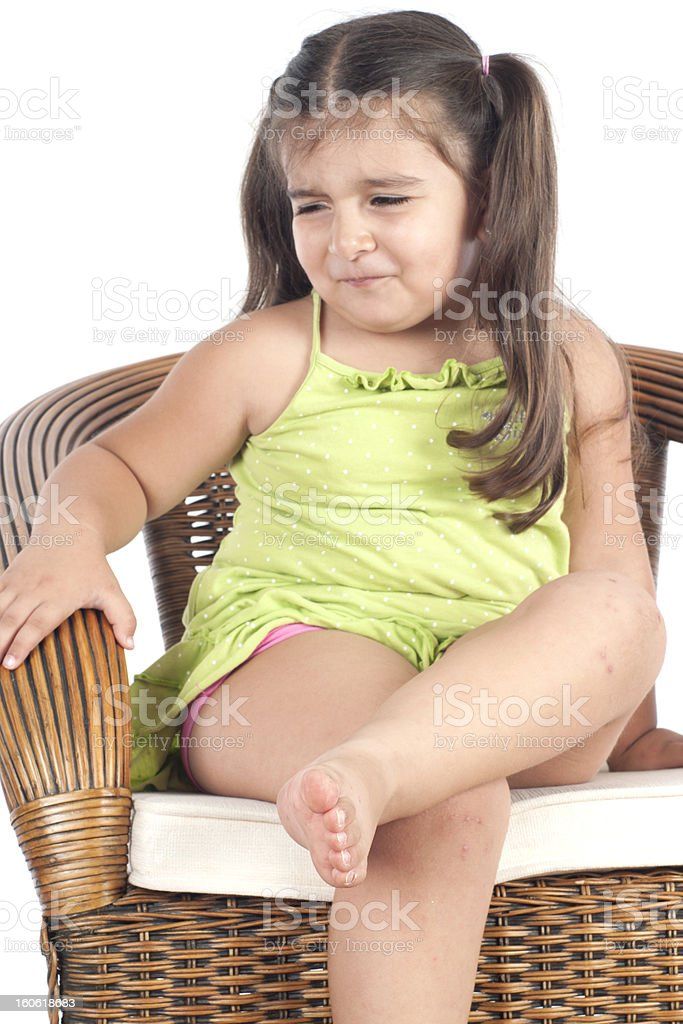 little girl's skin problems stock photo