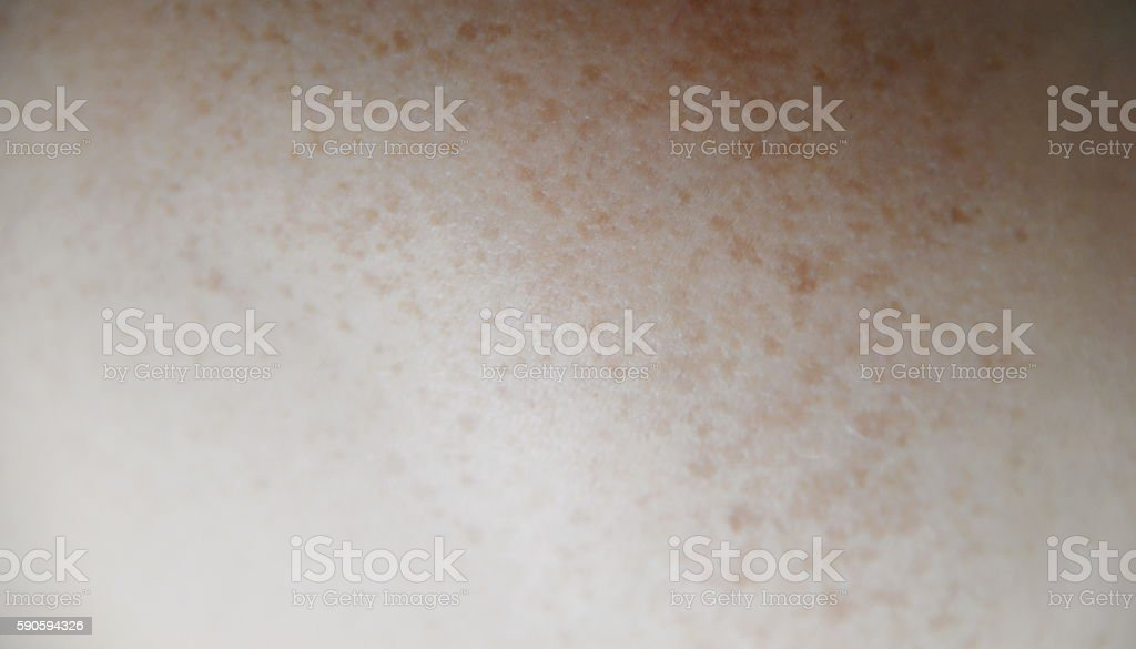 Liver spot on the skin of an old person stock photo