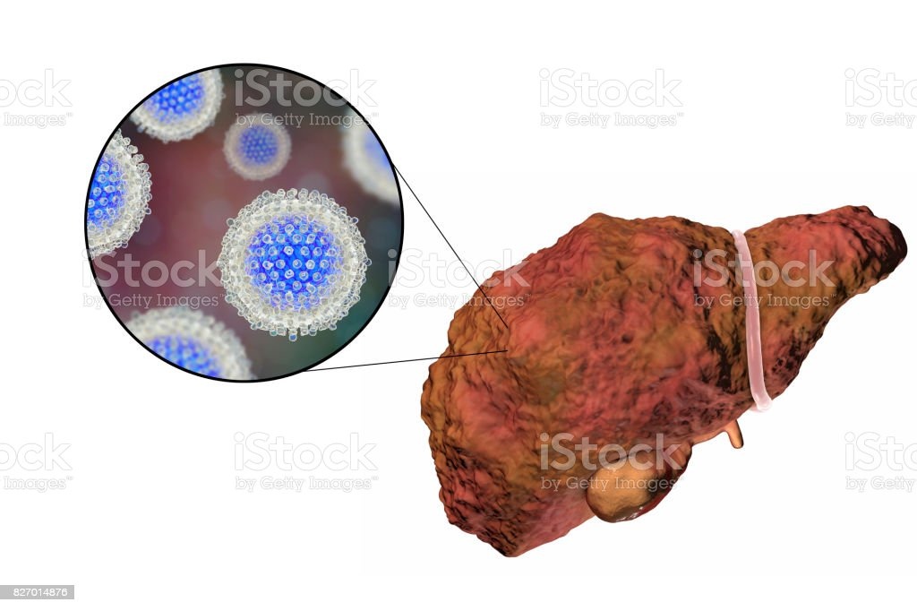 Liver with Hepatitis C infection stock photo