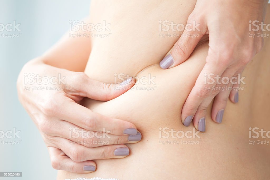 Localized fat in woman back stock photo