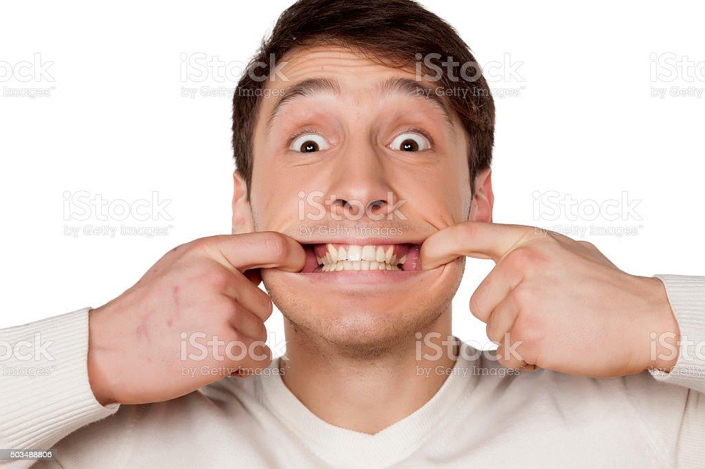 look at my teeth stock photo