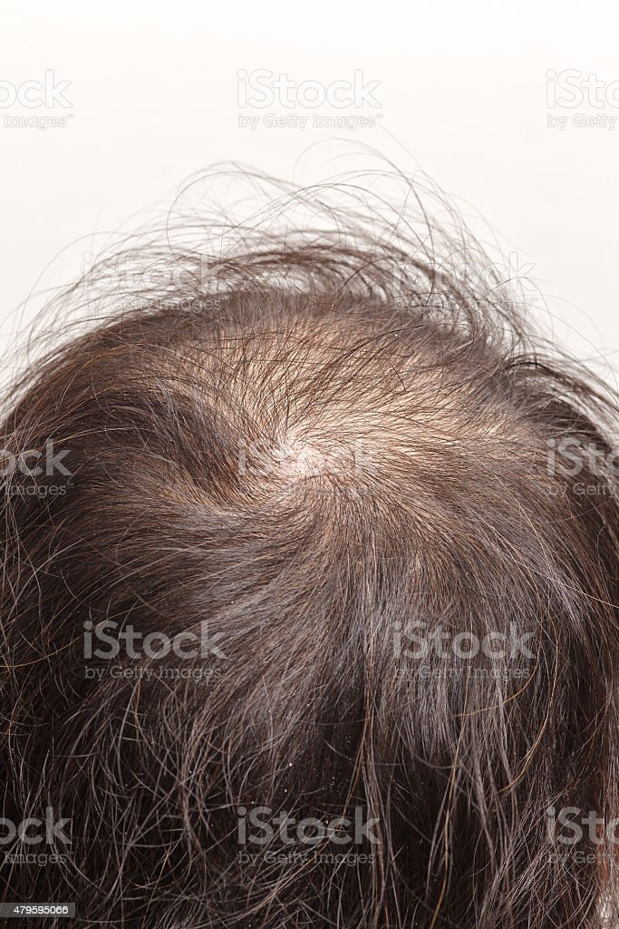 lose one's hair glabrous baldy loss stock photo