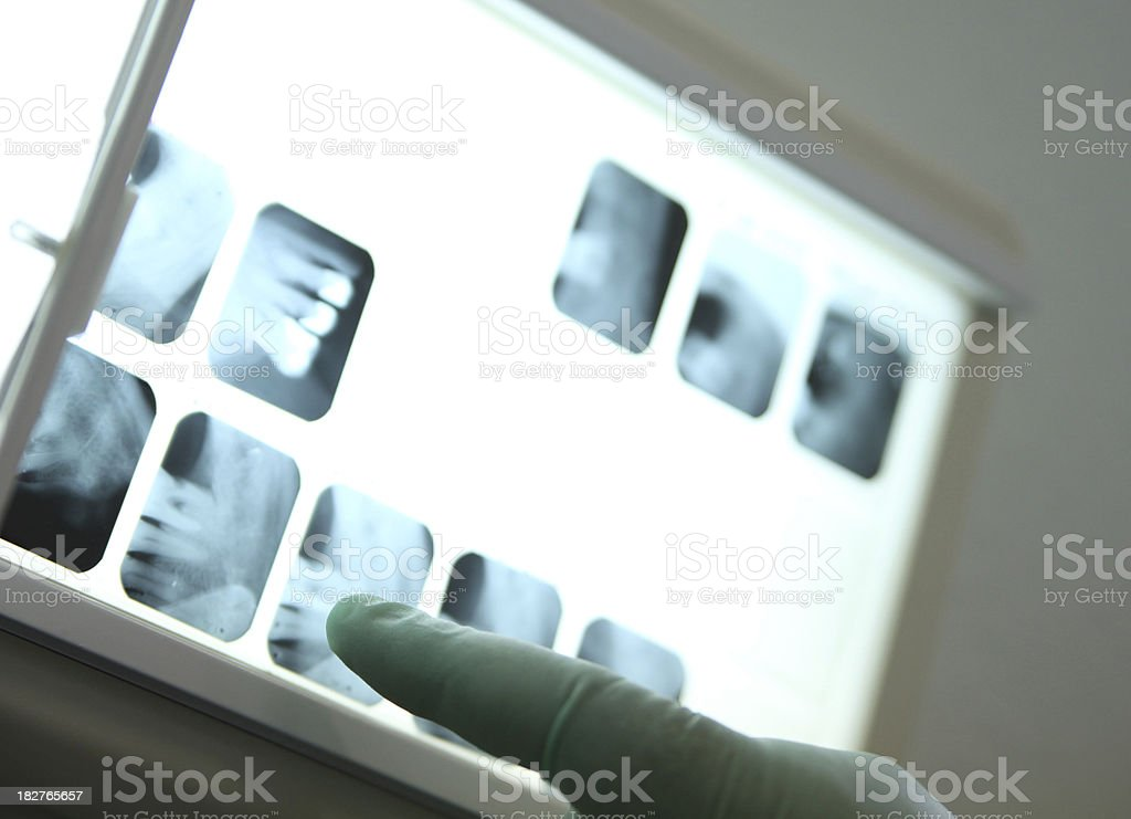 Low key shot of finger pointing at dental x-ray royalty-free stock photo