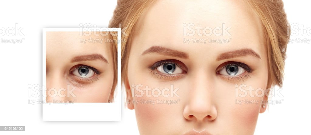 Lower Blepharoplasty.Upper blepharoplasty stock photo